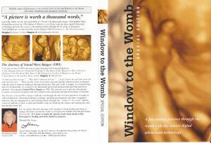 WINDOW TO THE WOMB - DVD